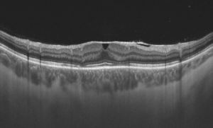 Vertical transfoveal OCT of an eye with epiretinal fibrosis Image courtesy of Rigshospitalet (Copenhagen)